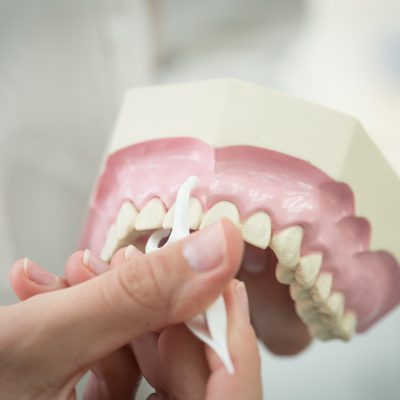 Extractions and Oral Surgery Aftercare
